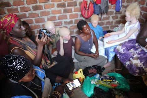 Diversity Matters Beyond Borders: Uganda trip to support Albinism Crisis Outreach!